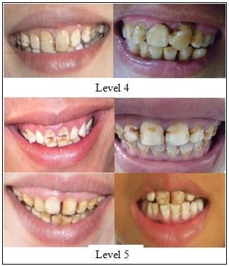 Hình 3: Tình trạng nhiễm fluoride trên răng của người dân vùng nghiên cứu